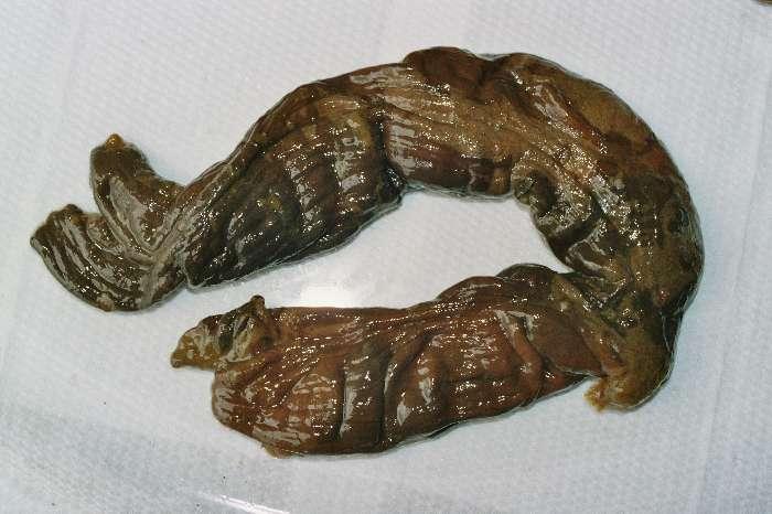 Nettoyage intestin grêle - Maigrir
