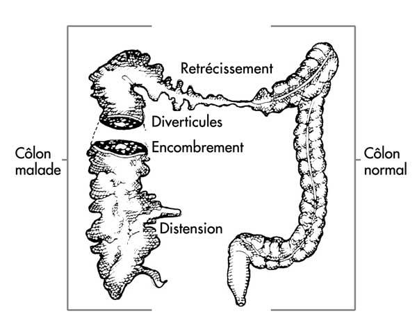 Les parasites la doctrine sur la vie 20 série